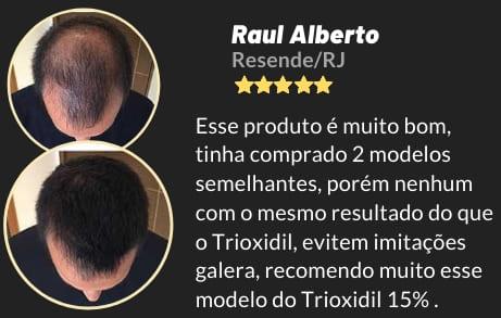 trinoxidil minoxidil